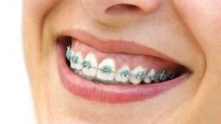歯列矯正の早送りGIF画像 歯が矯正されていく様子がヤバいwwwww