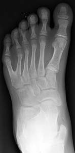 Polydactyly_01_Lfoot_AP