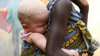 5歳アルビノ少女の手足切断遺体 呪術の犠牲に …アフリカ ブルンジ 呪術って・・・((゚Д゚;))