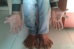 wpid-PAY-Devendra-Suthar-showing-his-28-fingers-and-toes.jpg