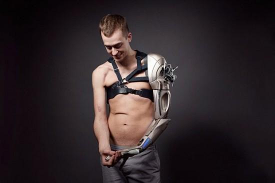 bionic_limb_1-620x413