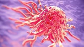ガンの正体は「真菌感染」ついに謎解明か →2chの反応