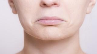 歯並び悪い女性が900万円かけて治療した結果 ⇒ 画像