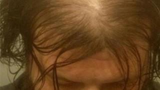 【朗報】ハゲを隠せる最強の髪型が判明する →画像