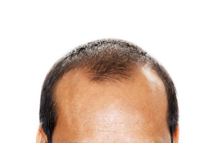 Male head with hair loss symptoms front side.