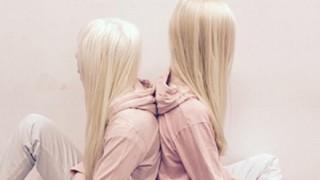 いまSNSで話題の女の子たち ロシアの『髪長姫』とAUSの『アルビノ少女』