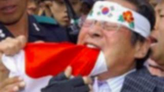 【悲報】 韓国人だけの病気「火病」米国精神医学会に公式登録される