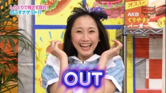 N1-15040405-05-AKB48-松井玲奈-銀歯