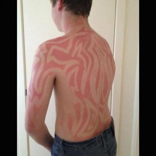 20-ridiculous-examples-of-sunburn-art-18