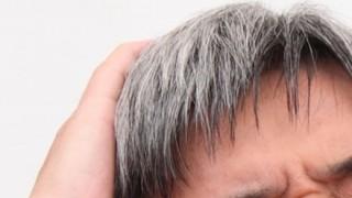 【偶然の発見】白髪に悩む人に朗報キタ━━(゚∀゚)━━!!