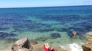 【恐怖の正体】海に入ってた少年 足に無数の穴が開いて血だらけに →画像
