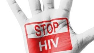 【悲報】日本人HIV感染者増加の原因 ←お前らの思ってる通りでした