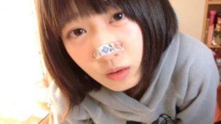 【コンプレックス克服】YouTuberねこてんちゃん ついに鼻テープを外す →動画像