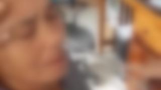 【衝撃】女性の喉に寄生していた巨大ヒル 摘出手術の映像