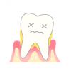 ◆体験談◆歯周病で全部の歯を失って1年たつんだが・・・・