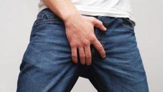 【症例報告】風俗で性病もらったオッサンの陰部がこちら →画像 ※閲覧注意※