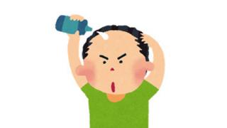 ◆ハゲの俺◆が『育毛剤』を始めて1ヶ月半のデコ比較画像wwwwwwwww
